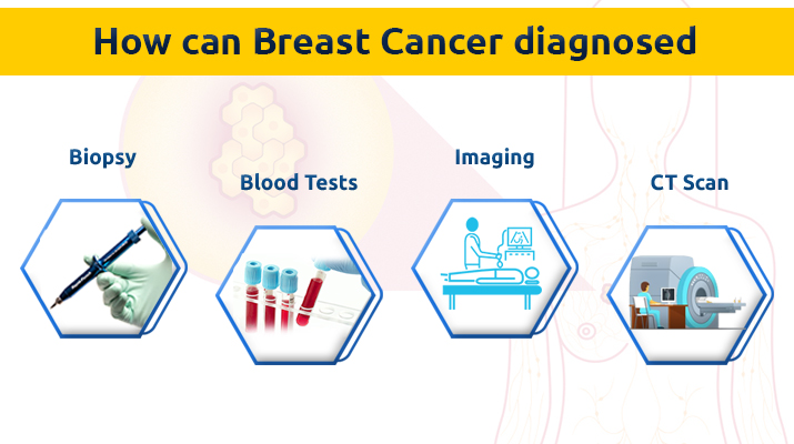 Breast cancer surgeon in Pune