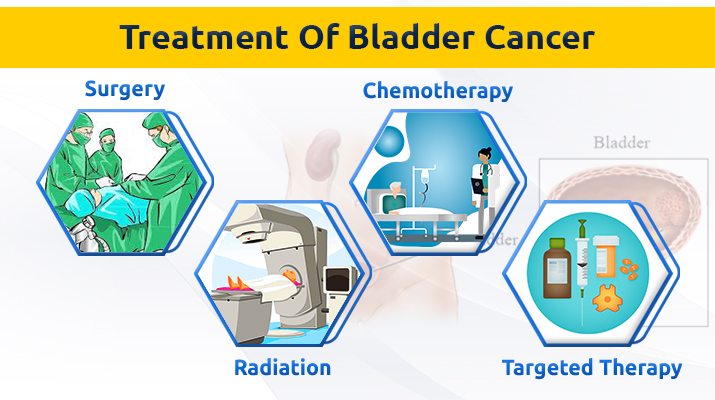 Urinary bladder cancer treatment un pune